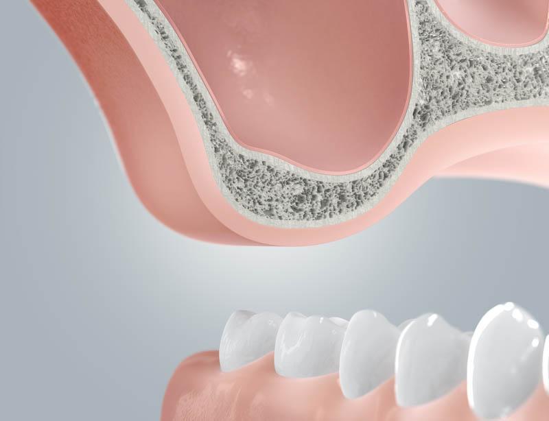 Zahnimplantate & Implantation - Sinuslift - Berlin Mitte