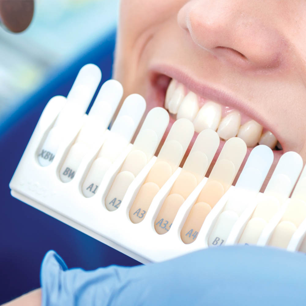 Prothetik & prothetischer Zahnersatz bei Ihrem Zahnarzt in Berlin Mitte